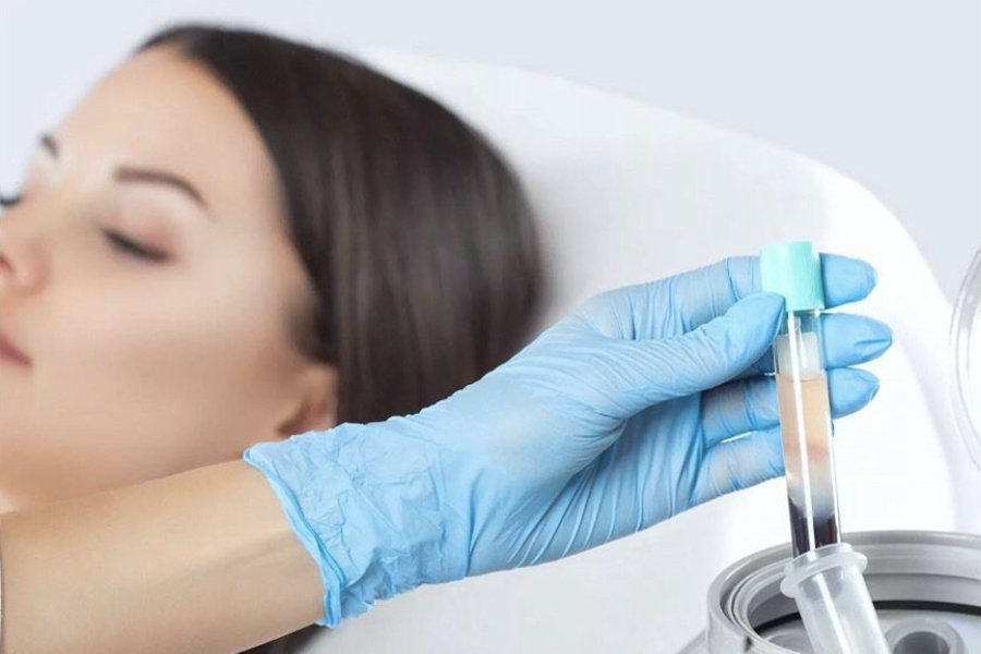 Platelet Rich Plasma Treatment Raffle